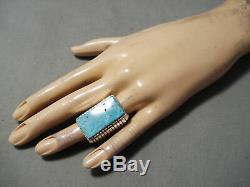 Big Huge Vintage Navajo Kingman Turquoise Sterling Silver Ring Old