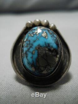 Striking Vintage Navajo Old Morenci Turquoise Sterling Silver Ring Old